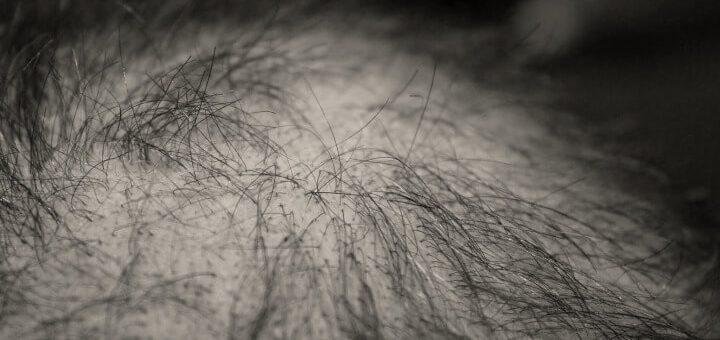 Haartransplantation-Alternativen